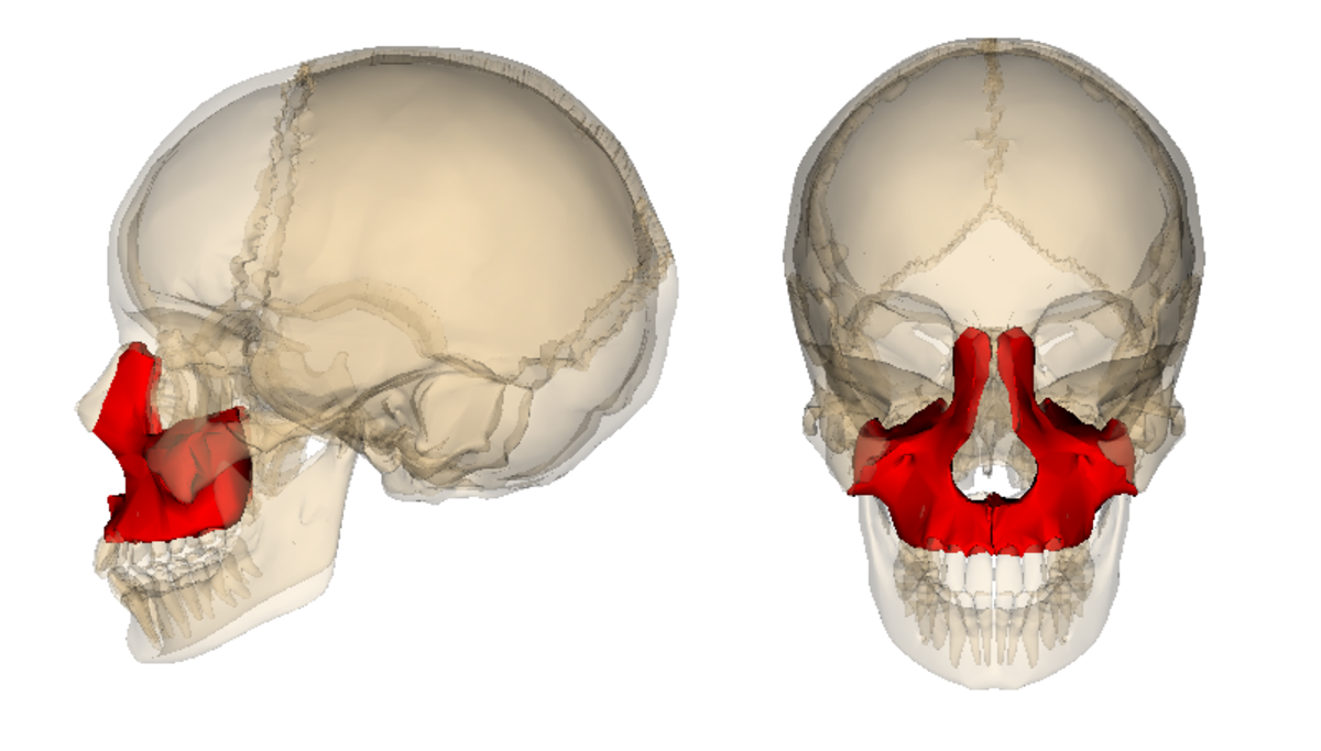 "The red part is the maxilla which they ""broke"" in several places and reconstructed."