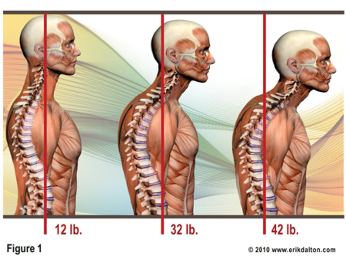 Proper Posture - Weight of the Human Head - Visuals To Help You Prevent Back Pain - Spine Alignment