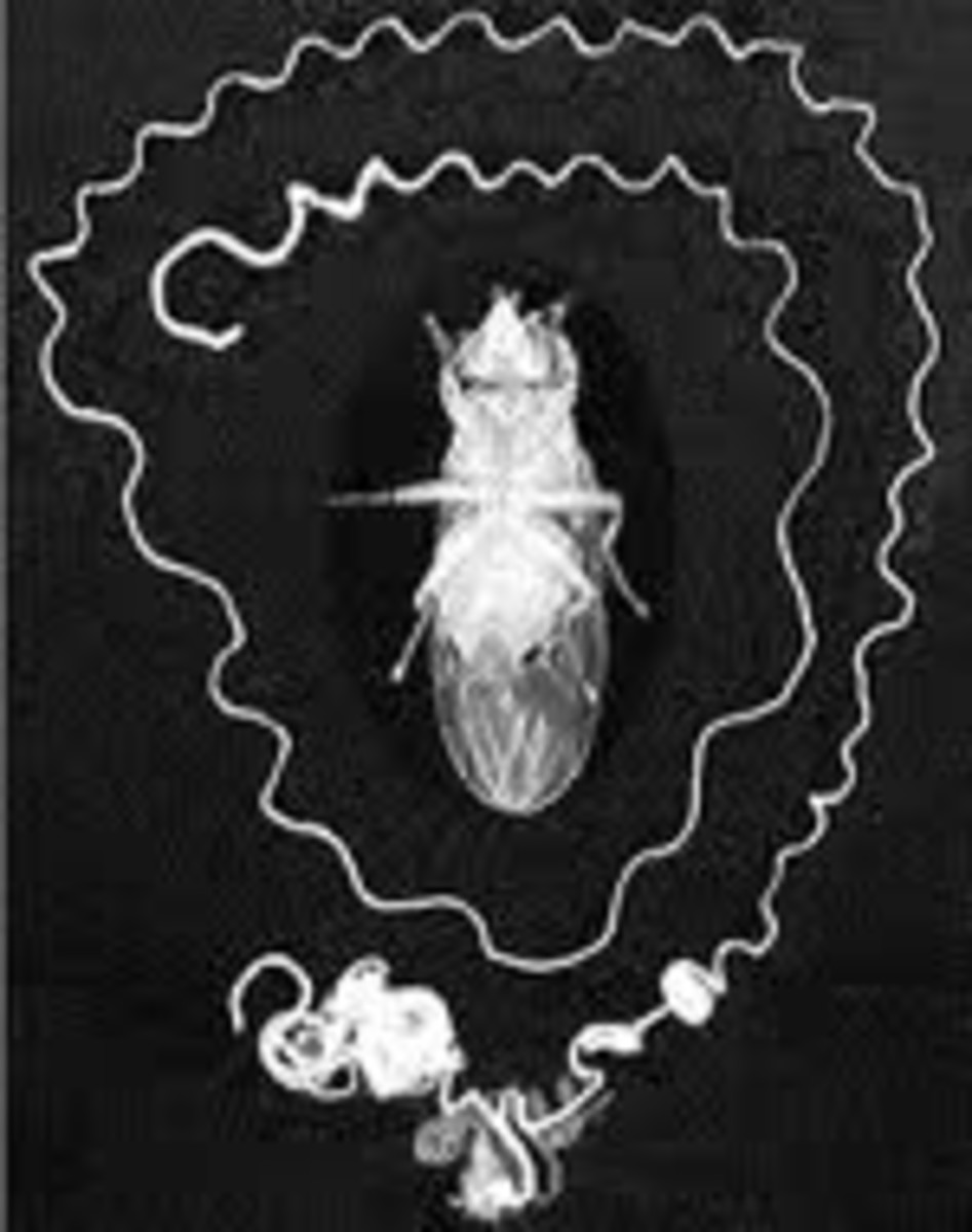 A fruit fly surrounded by a single sperm.