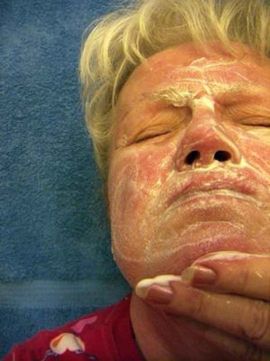 The Dangers in Using Sulphur cream