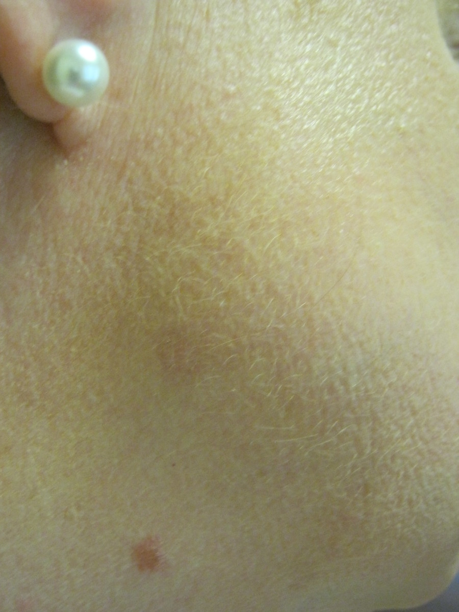 The place where two moles used to be, now this one is just a pink spot that keeps fading as weeks go by. It is about an inch above my other mole, that I still have. The one that disappeared used to be a fairly large, raised brown mole.