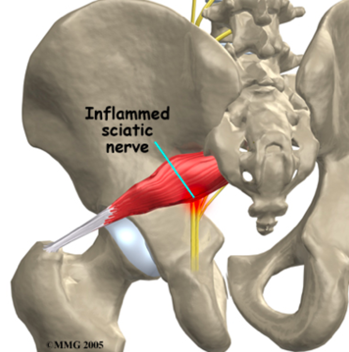 Sciatic nerve is the largest nerve in your body
