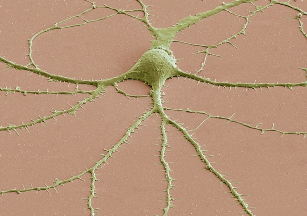 Photomicrograph of a neuron's cell body (top, center) and its dendrites radiating out of it, obtained with a scanning electron microscope.