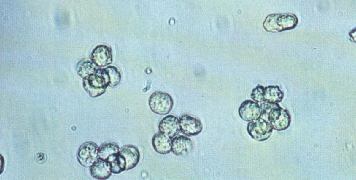 Leukocytes in Urine – Symptoms, Causes, Treatment