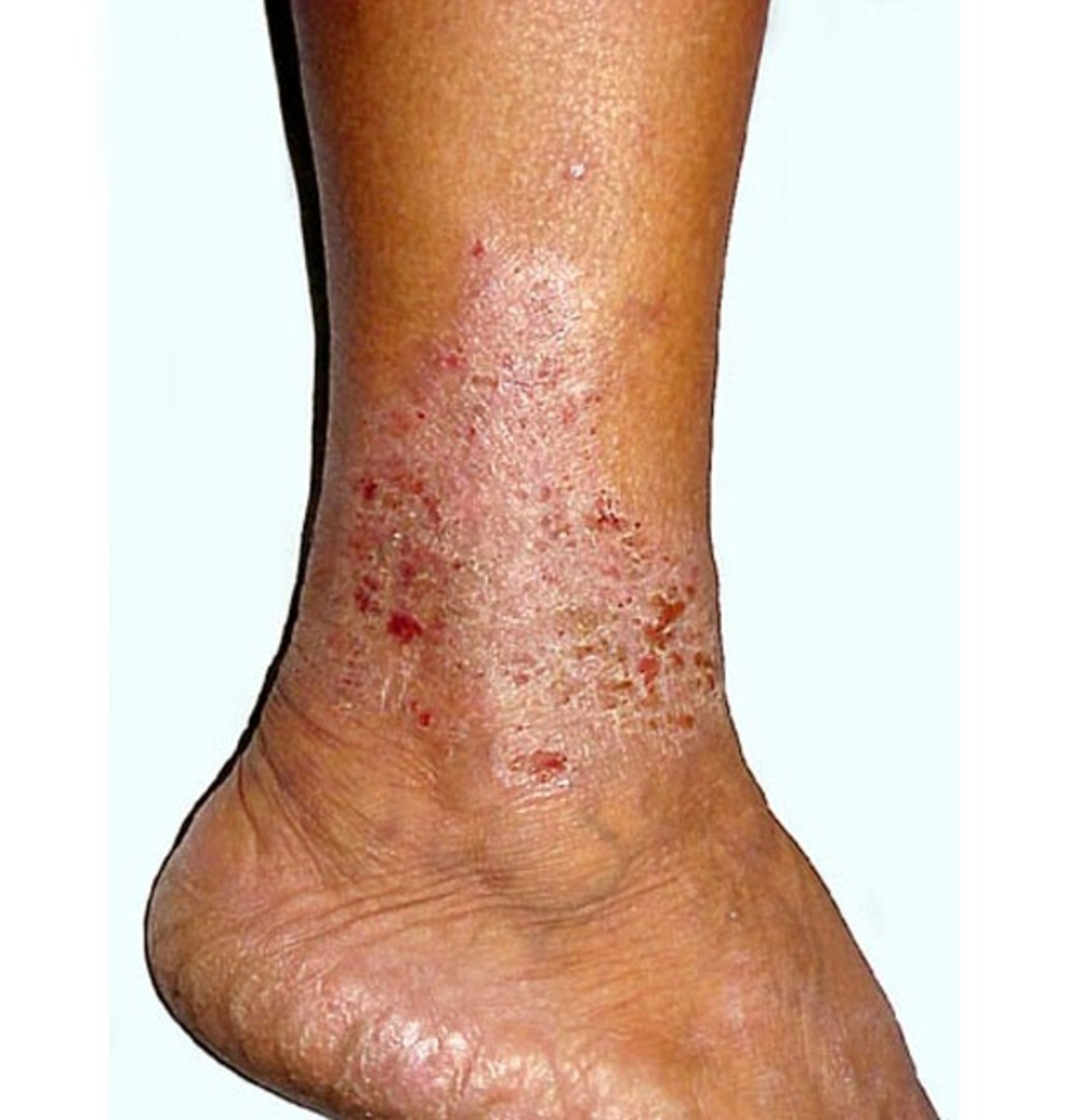 Stasis Dermatitis - Pictures, Symptoms, Causes, Treatment, Diagnosis