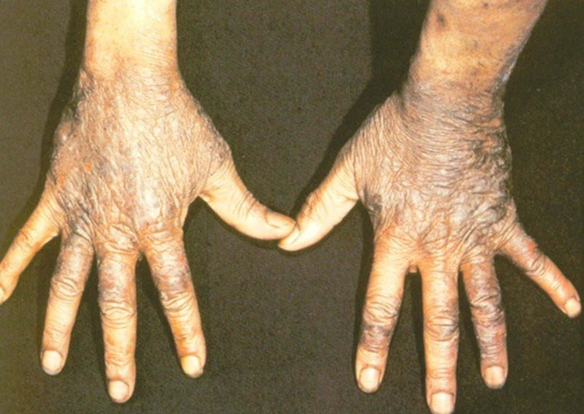 Pellagra - Pictures, Symptoms, Treatment, Causes, Diagnosis