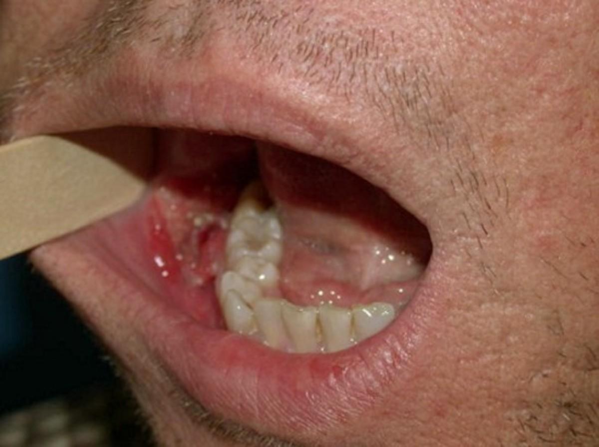 throat-cancer