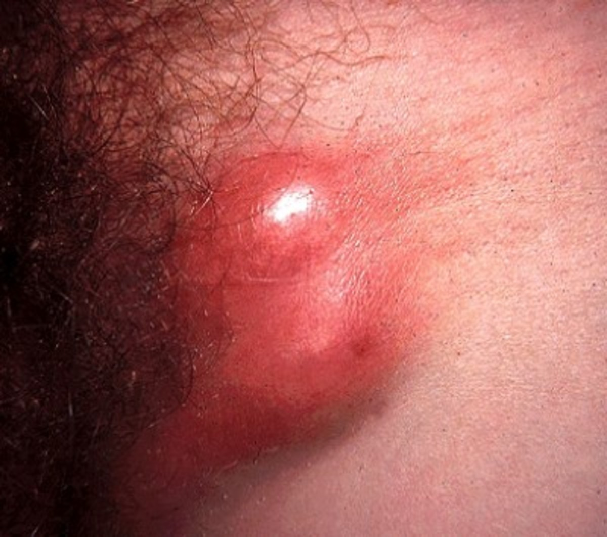 Lymphogranuloma Venereum: Health Relevance, Clinical Presentations, Diagnosis And Treatment