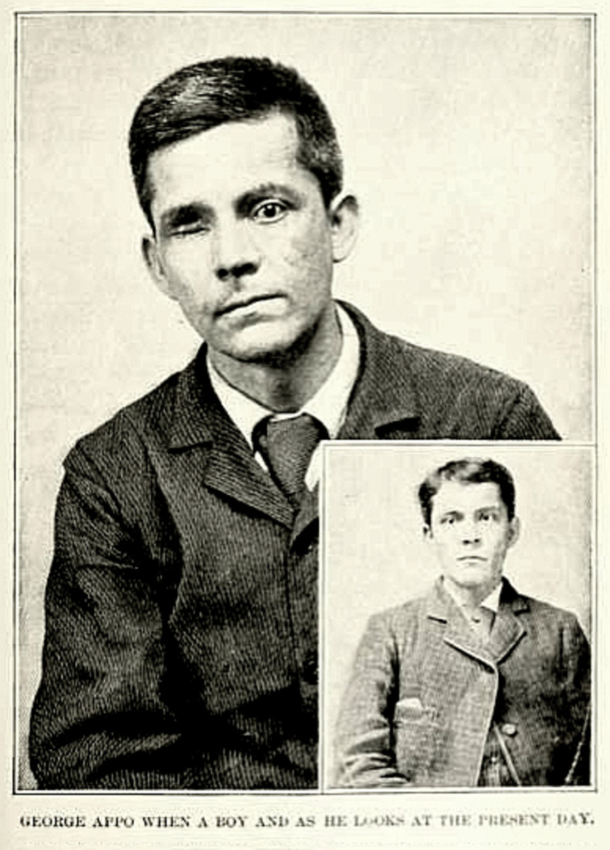 George Appo, Chinese-Irish professional pick-pocket and green goods scammer of 19th Century Five Points gangland: Before and after losing his eye from a gun shot.