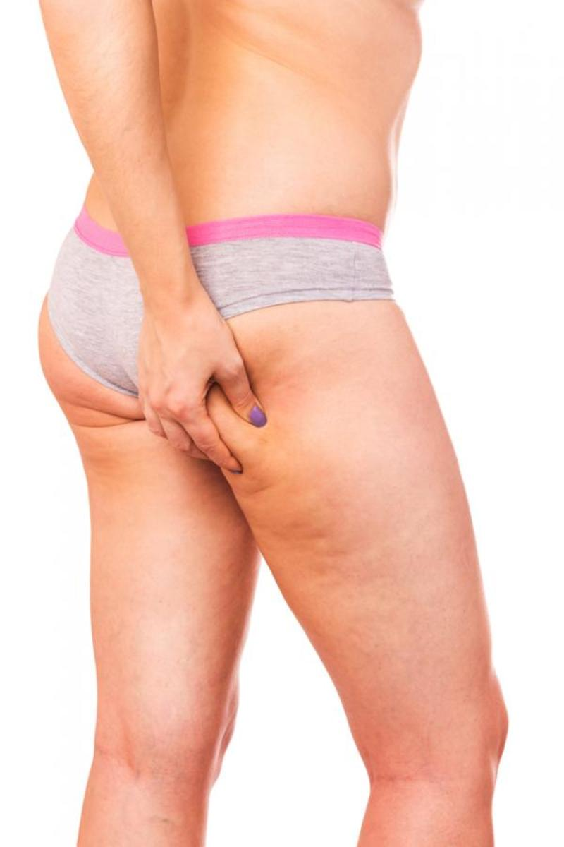 Take the cellulite dimple test