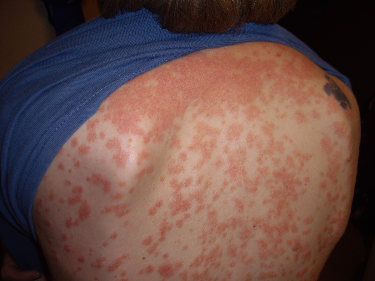 Hemp oil is said to draw psoriasis out of the skin,  thus eliminating it unlike most treatments.