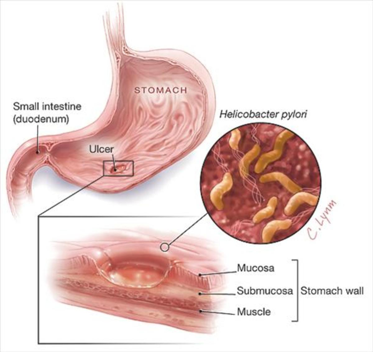 my-experience-with-h-pylori