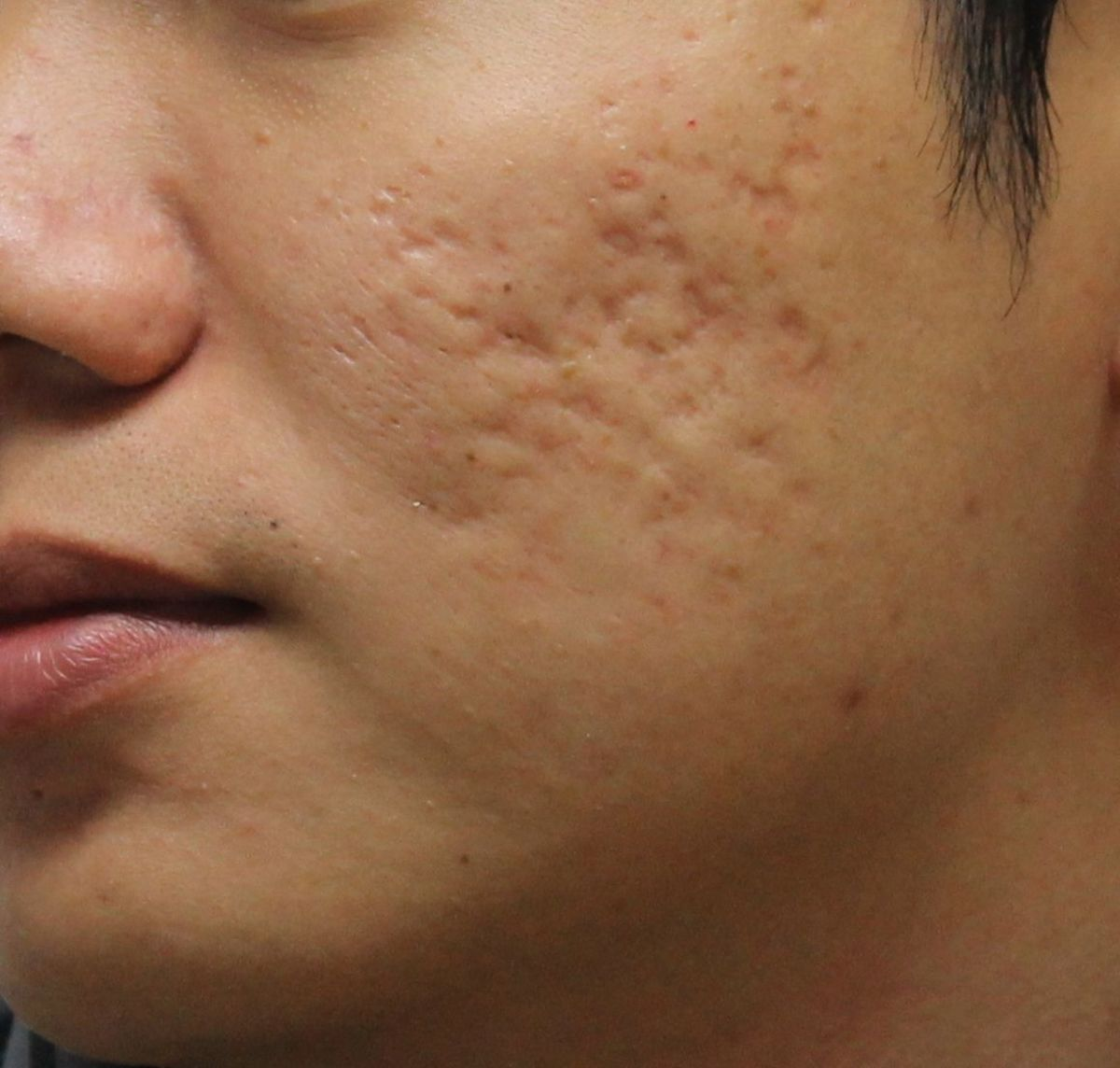 Over The Counter Acne Scar Creams Hubpages