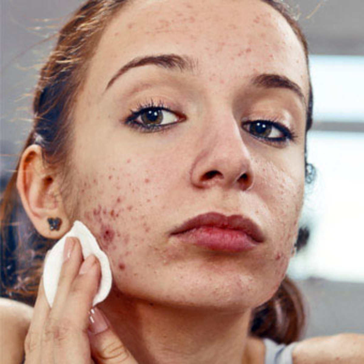 How To Treat Folliculitis Hubpages