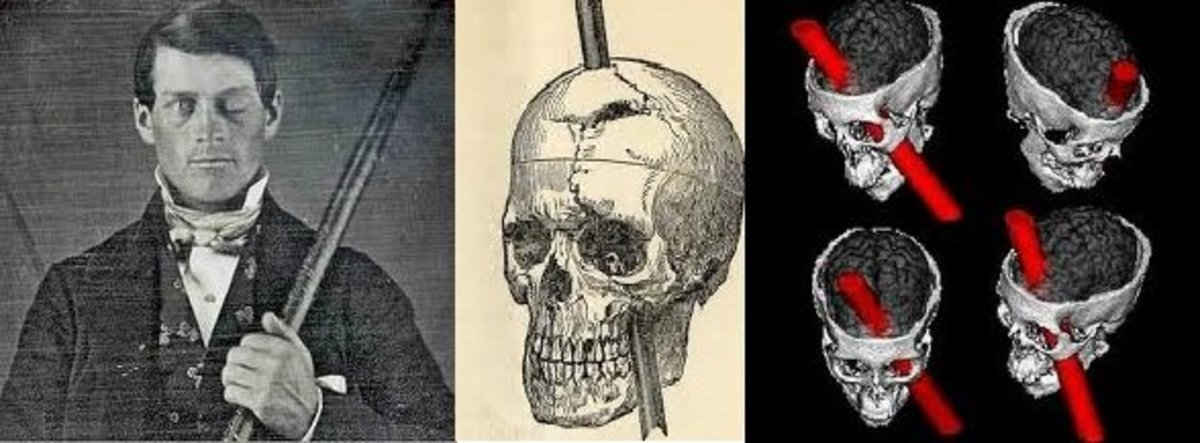 Phineas Gage Personality: It's All in Your Head