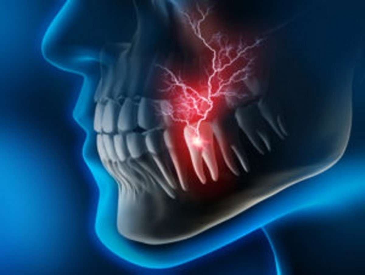 A few symptoms of oral galvanism: Abnormal muscle contractions of the jaw, metallic taste, inability to focus, memory problems, migraines, and tooth pain.