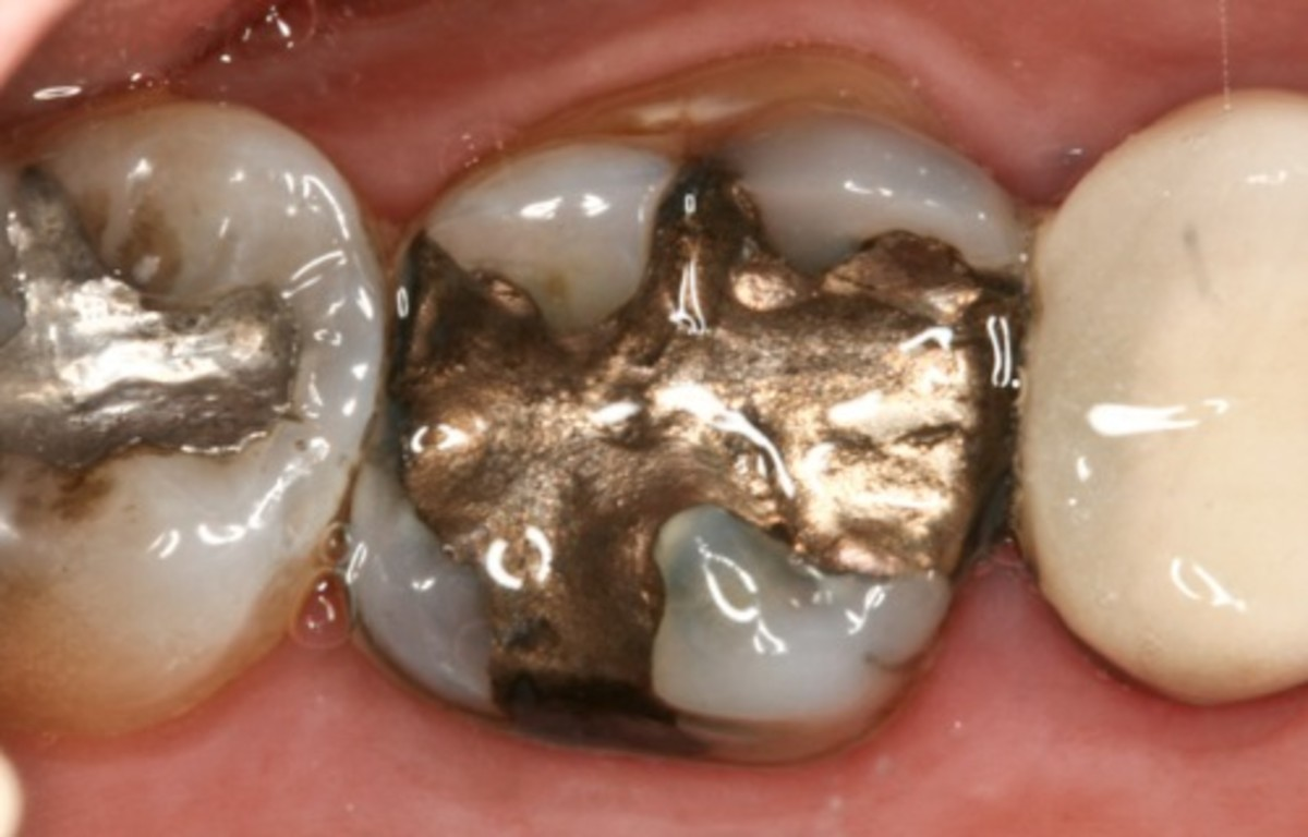 When two different types of metal come together in a solution, the metals effectively become a battery. In the mouth, this is called oral galvanism.