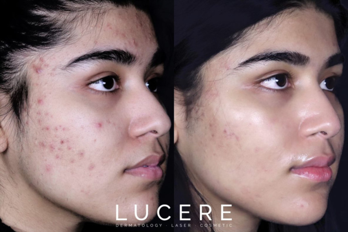 what-is-adult-on-set-acne-and-how-can-it-be-treated