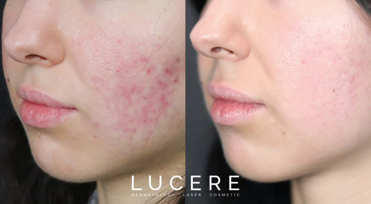 What Is Adult On-Set Acne and How Can It Be Treated?