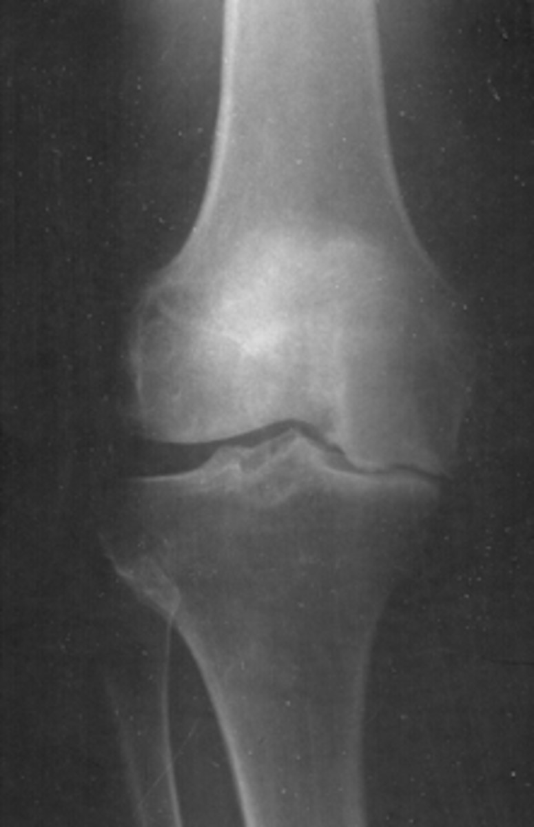 high-tibial-osteotomy