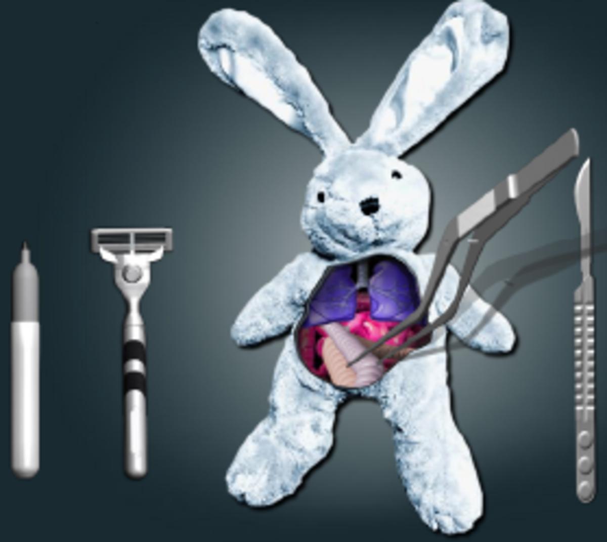 pectus-excavatum-insurance--surgery-tips