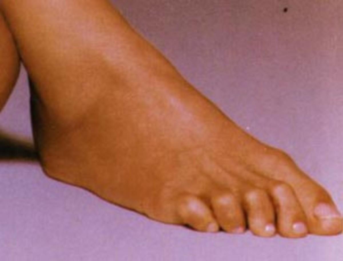 Celebrity Foot #5