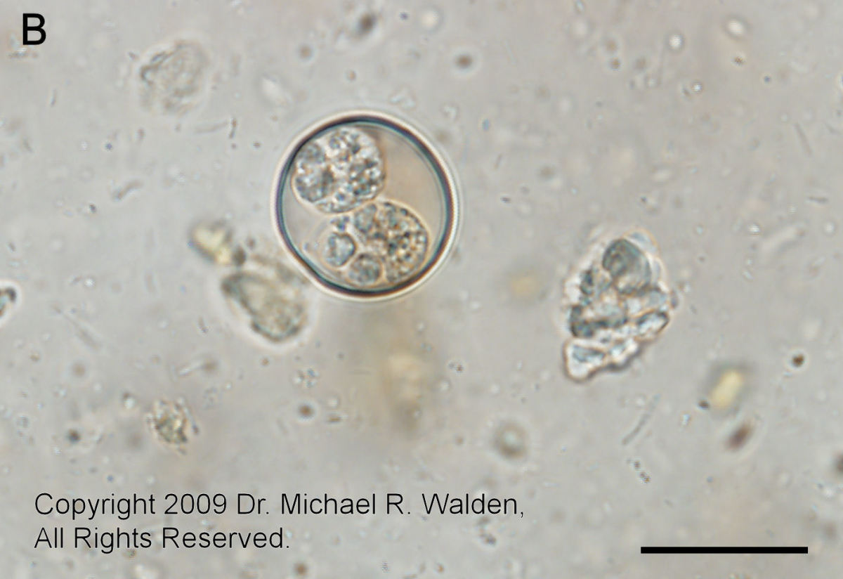 Isospora amphiboluri oocyst.  Bar = 20 microns. 600x.  Used with permission.