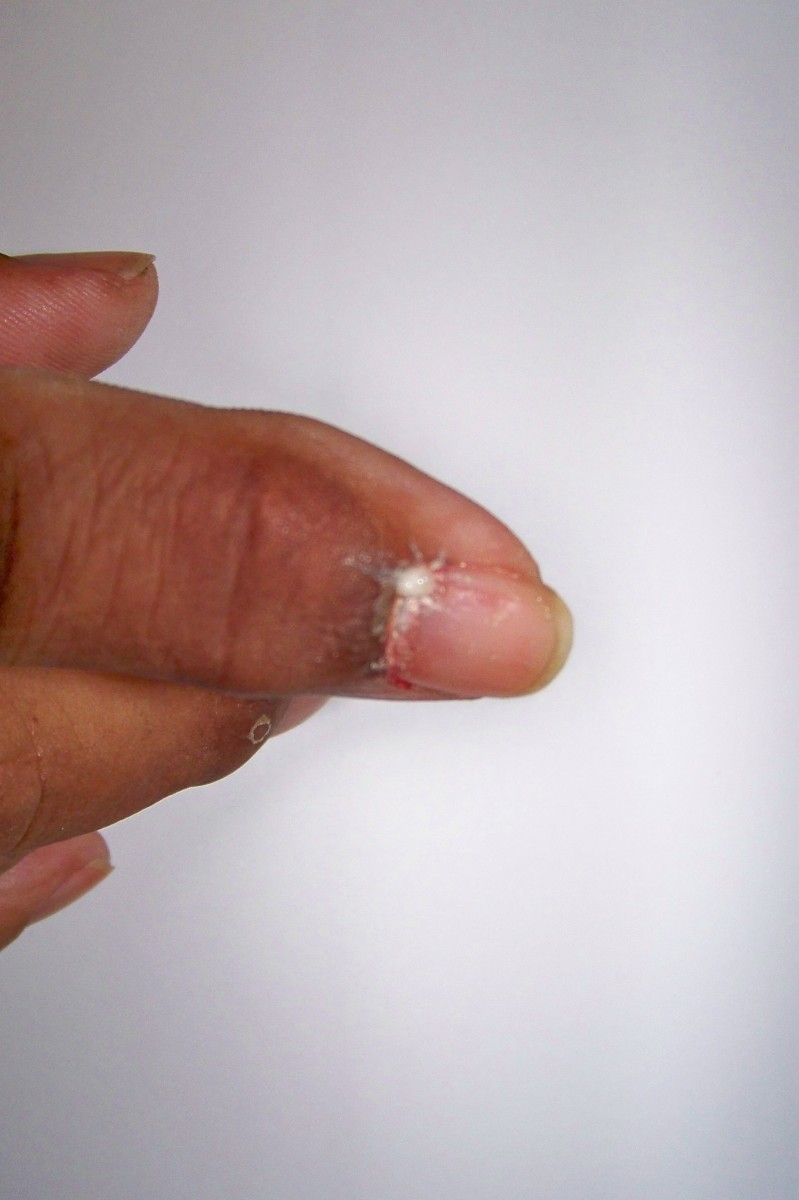 This shows how the uric acid is white and thick when it first emerges from the finger.