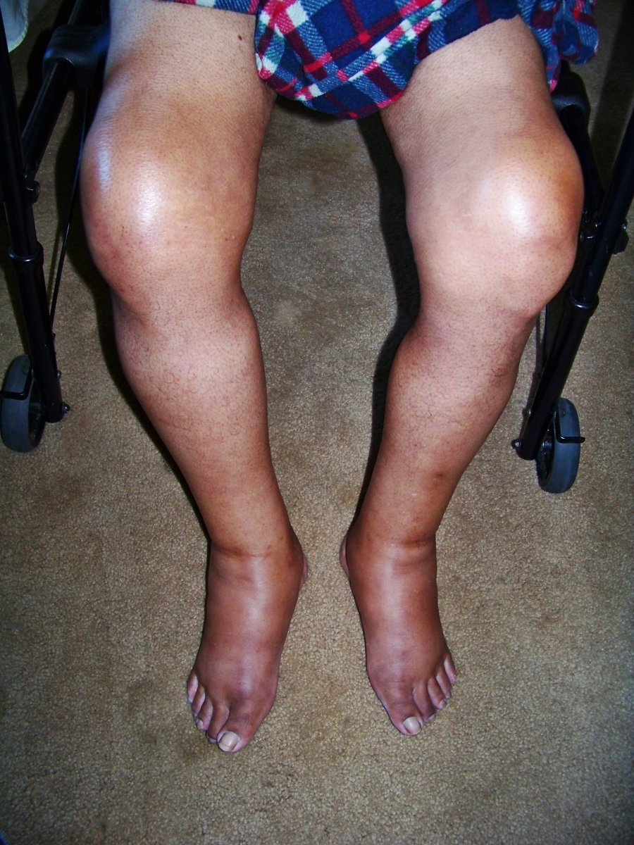 This picture was taken August 26th the surgery was on August 10th. The edema is getting better but the gout is still a problem.