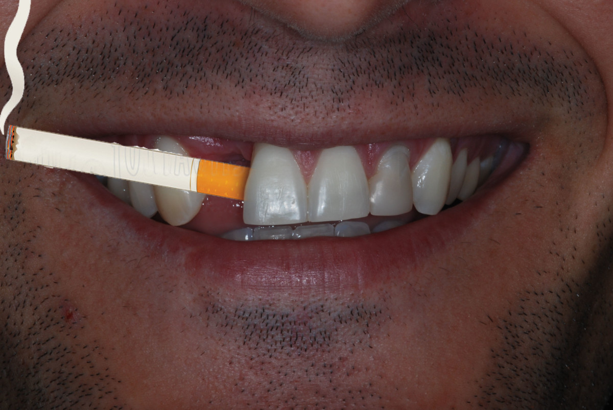 One convenience of a missing tooth...