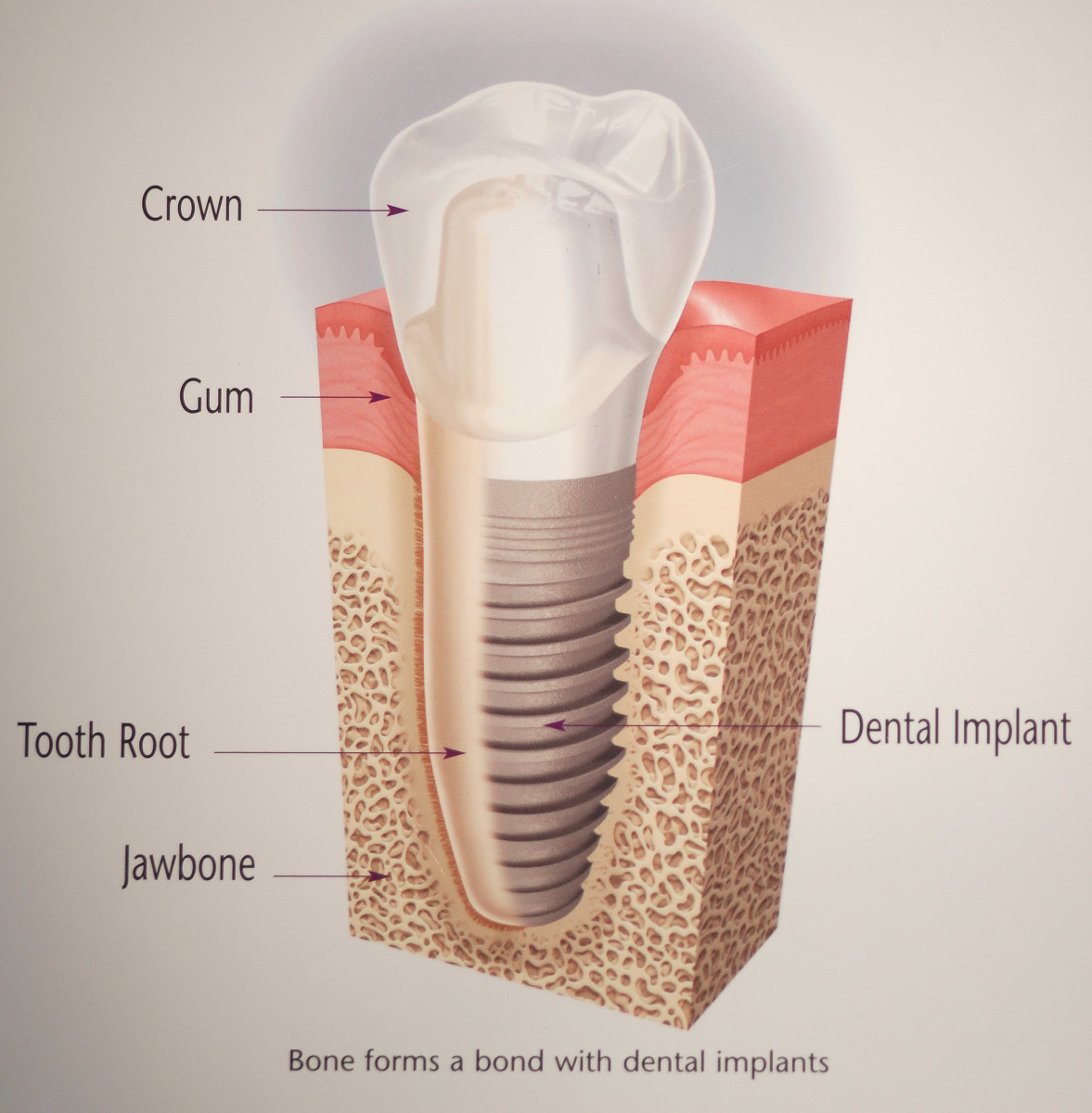 Diagram comparing natural tooth (on left) with implant tooth (on right). Image courtesy of Nobel Biocare patient education materials.