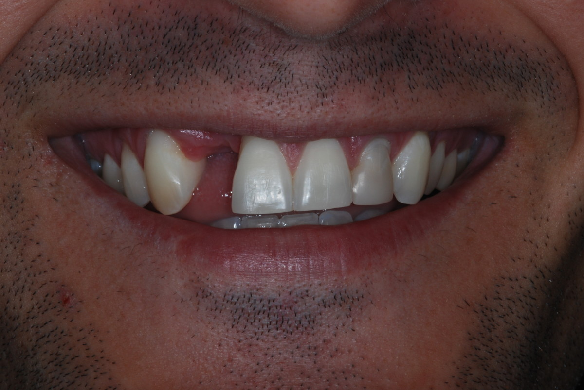 whats-the-best-way-to-replace-a-missing-tooth