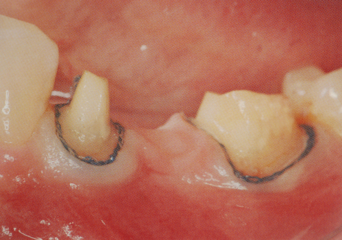 Adjacent teeth prepared for bridge.