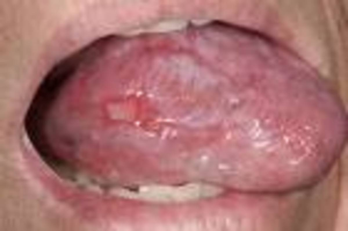 Lesions on tongue