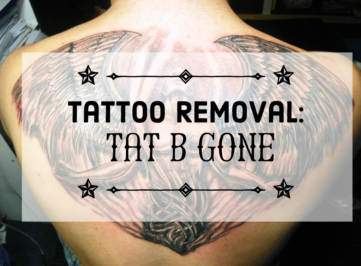 Tat B Gone Tattoo Removal: Review and Testimonial