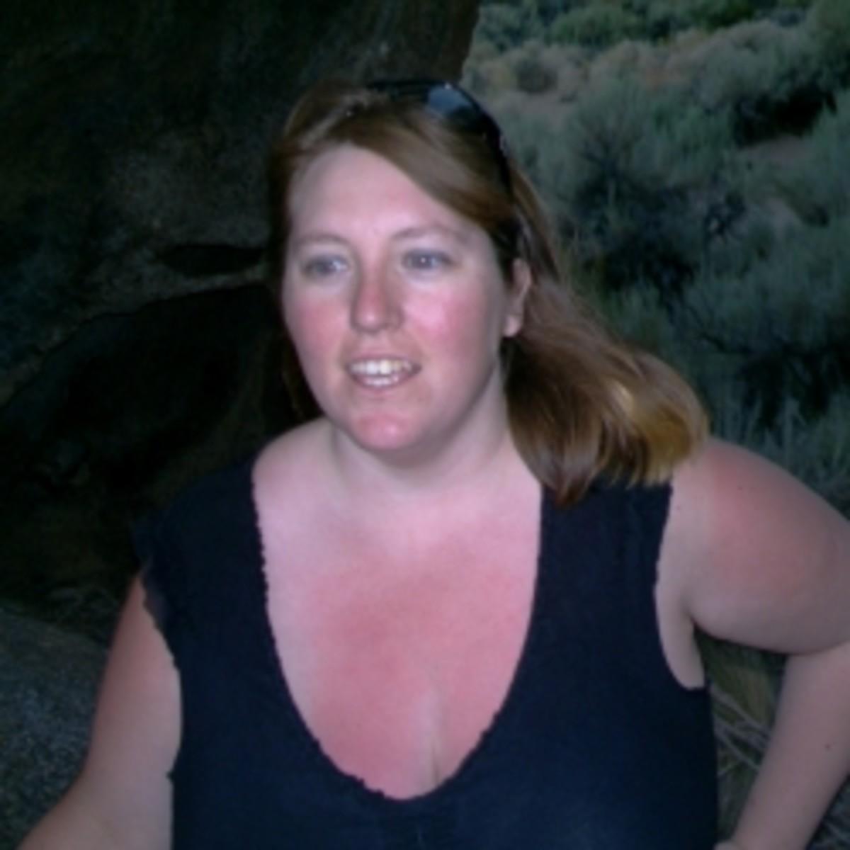 Sunburned me while hiking in the Alabama Hills