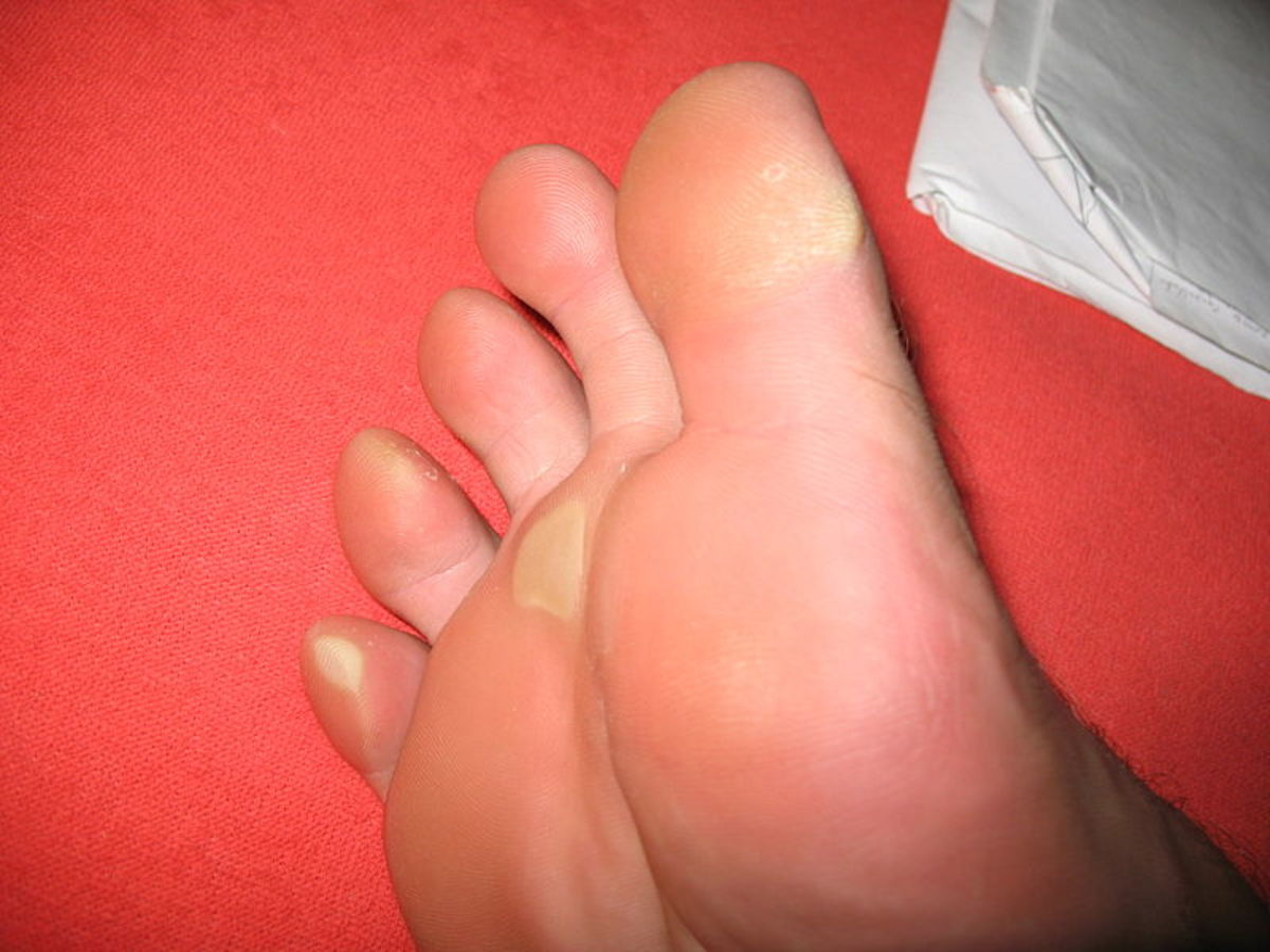 How To Remove Corns or Calluses From Your Feet