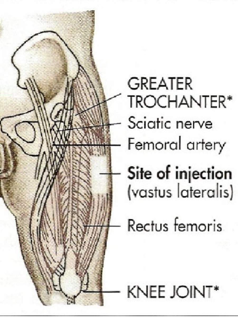 Vastus Lateralis Injection
