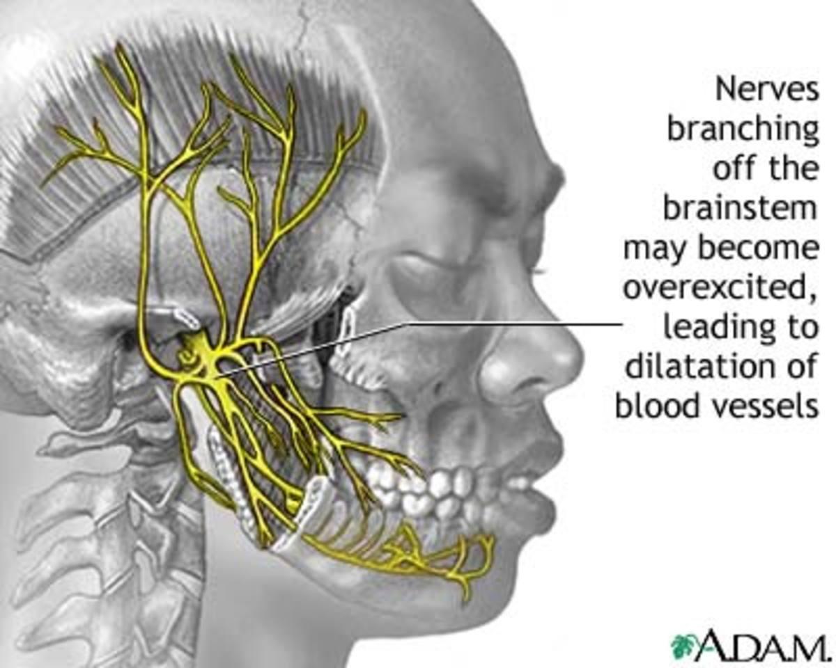 Headaches - New Treatment