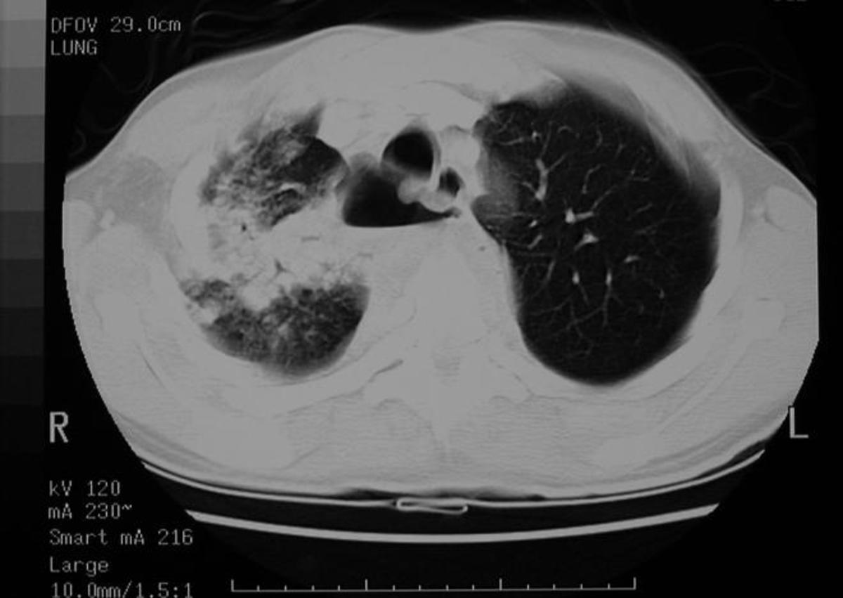 CT scan of a lung abscess inside (middle bottom: spine, midline top: heart, left, in black: left lung, left: complex solid/liquid/air lesion = abscess)