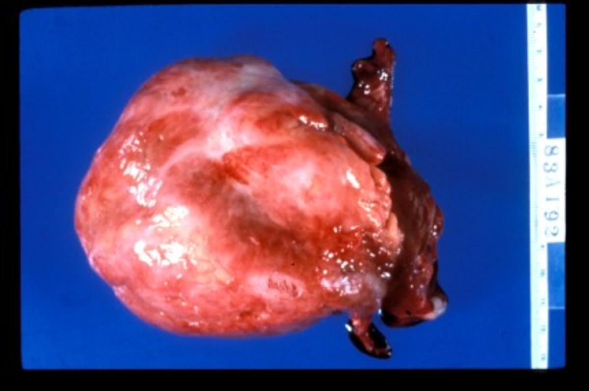 The globular heart shows right ventricular dilatation, a sign of chronic cor pulmonale.