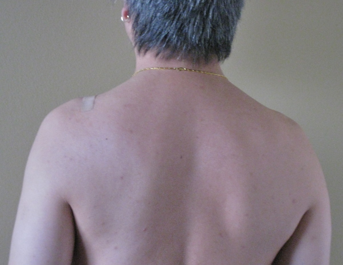 improve-your-posture-one-muscle-at-a-time