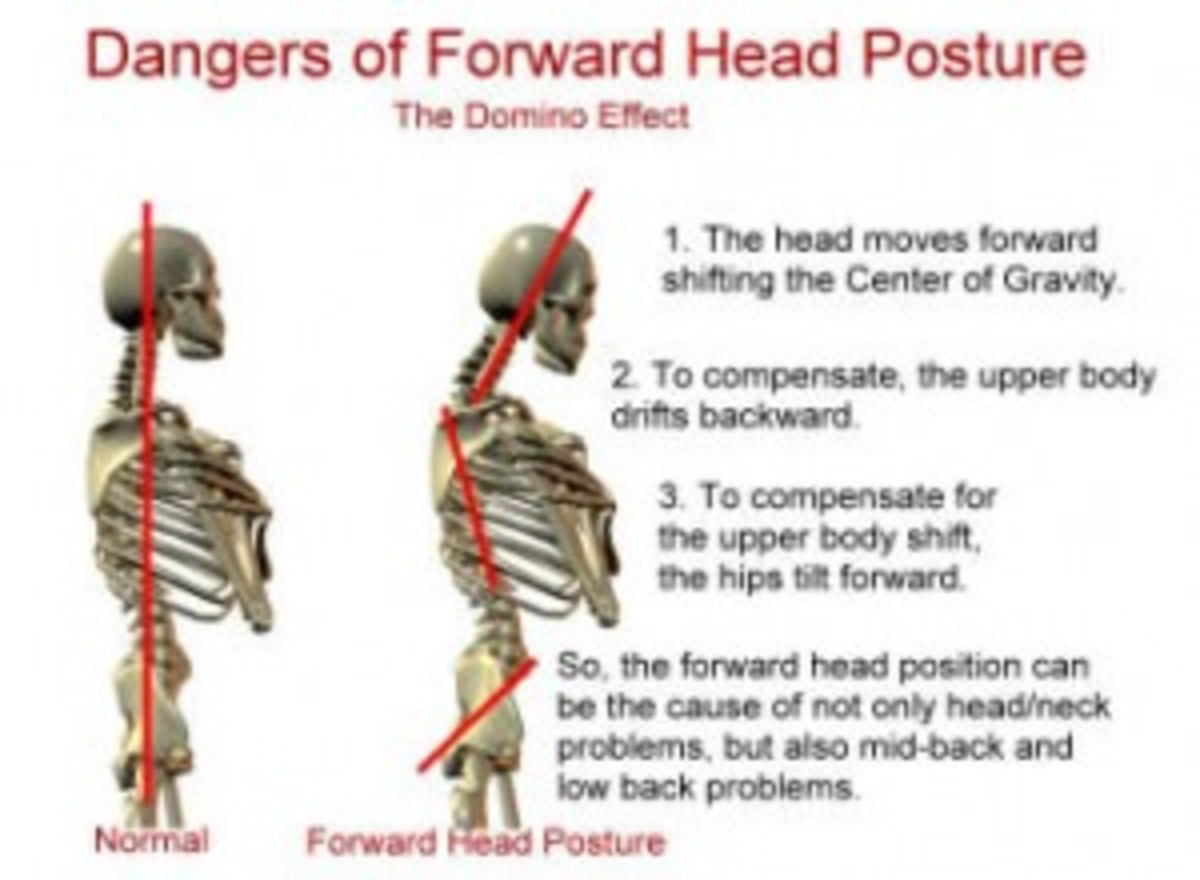 Do you feel achy between your shoulder blades? Does the pain in your neck radiate up into your head giving you a throbbing headache? Could it be your posture?