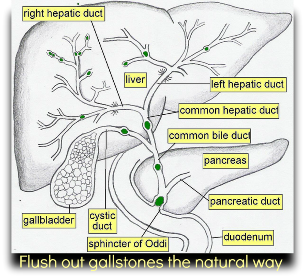 How To Flush Out Gallstones