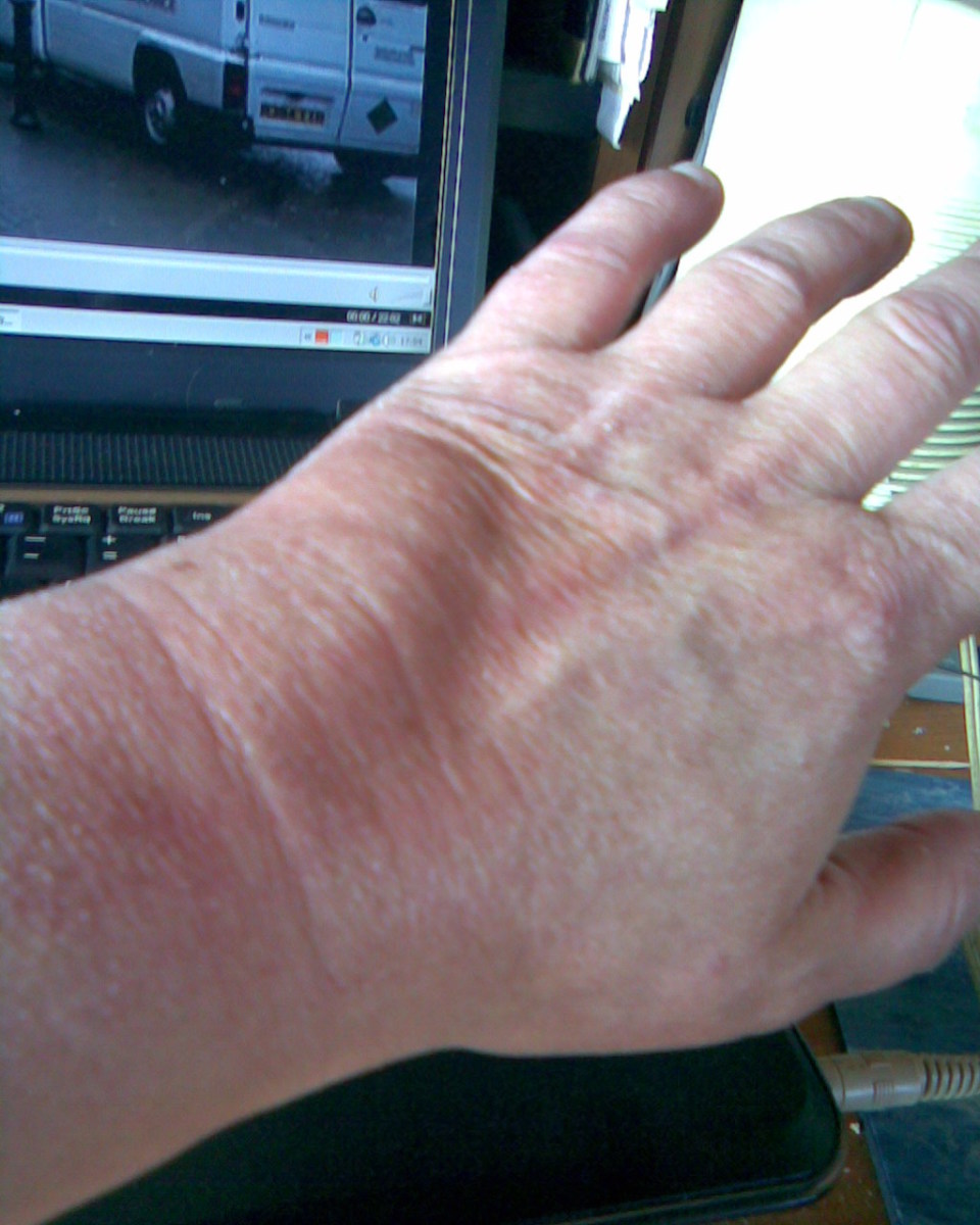 swelling of hand following an insect bite