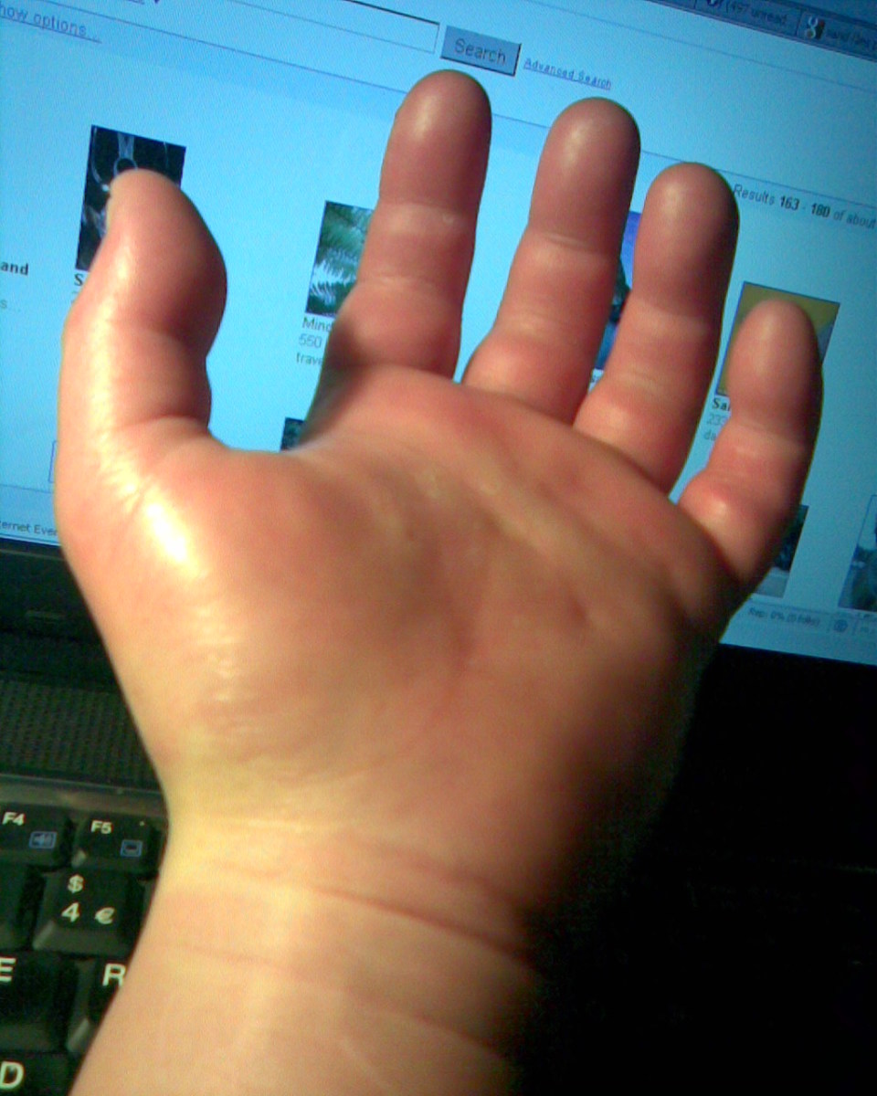palm of hand grossly swollen