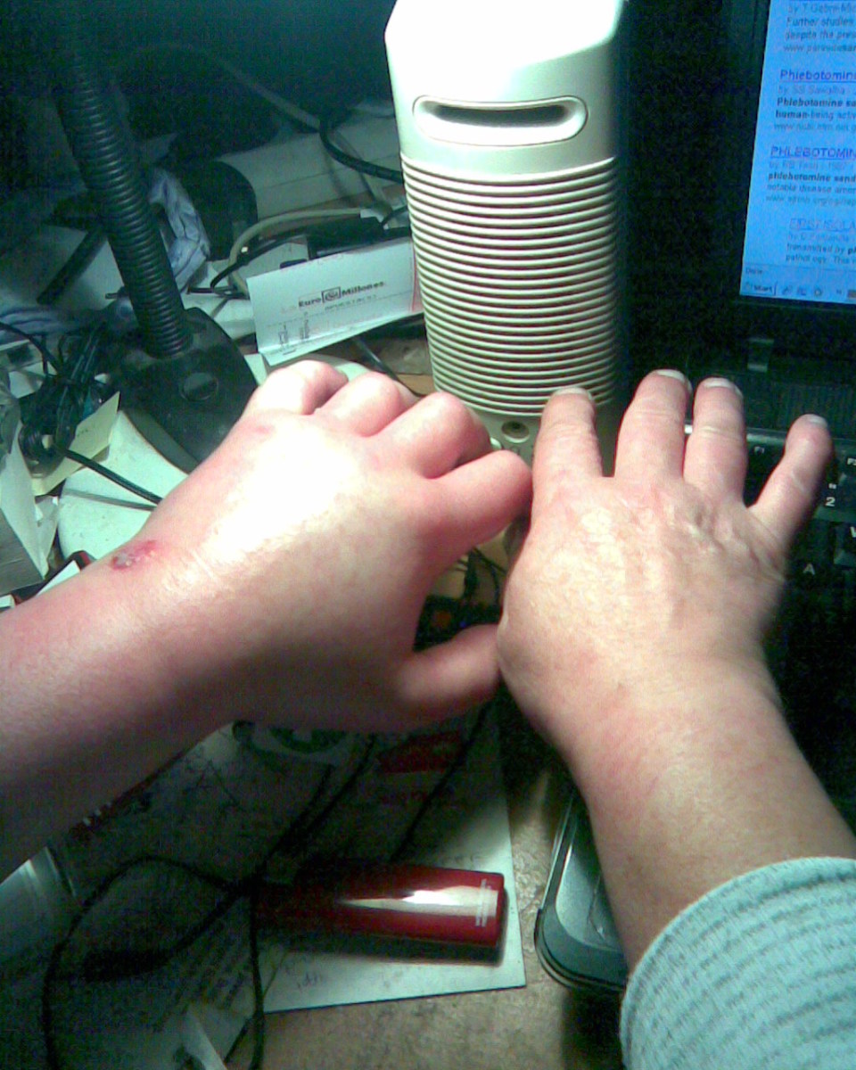 both hands for comparison - note how the bite would on the left back of hand/wrist has opened up.