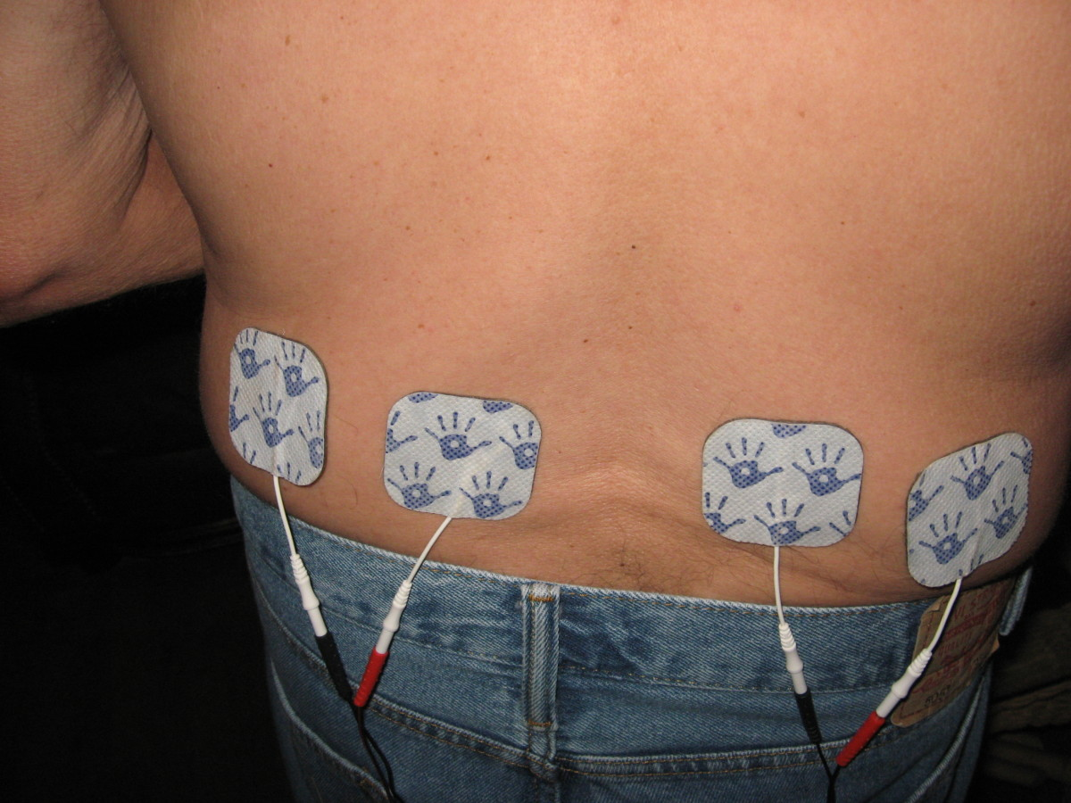 A TENS unit can sometimes offer nerve pain relief.