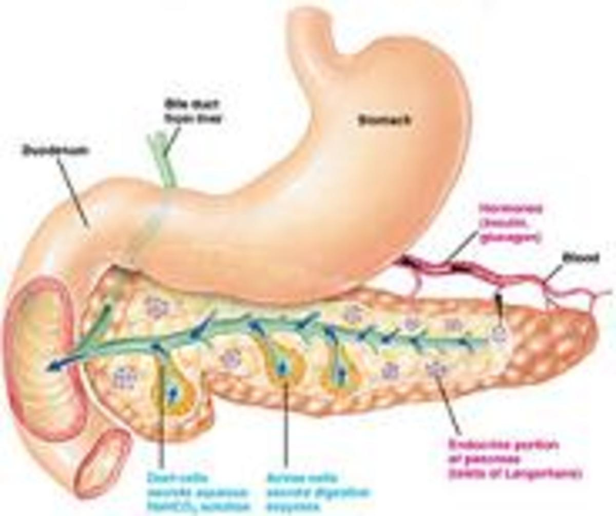 pancreatitis, pancreas, pancreatitis diet