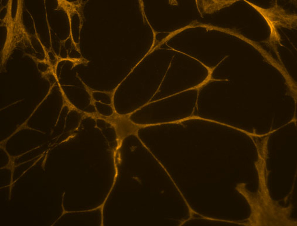 A complex nerve cell.